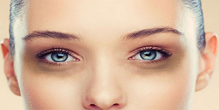 under eyes dark circles tips