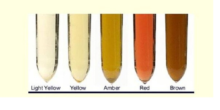 Urine Colour1