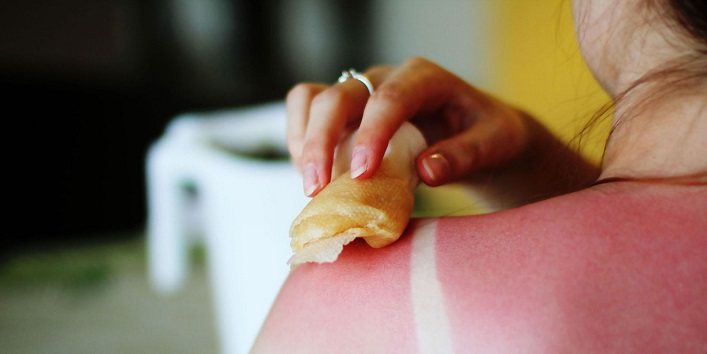 Honey to soothe harsh sunburns