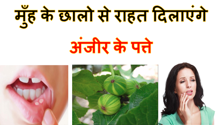 how to cure mouth ulcers using anjeer leaves