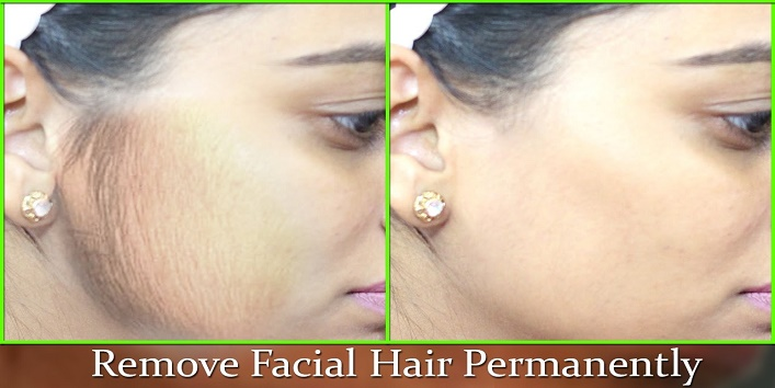 how-to-remove-unwanted-facial-hair cover
