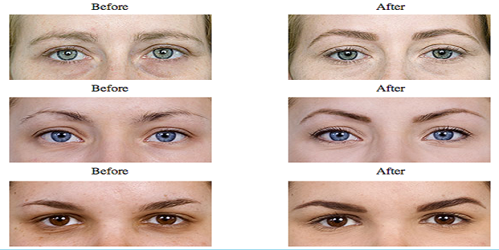 Redefine your eyebrows