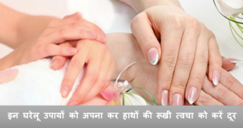 How to get rid of dry skin of hands cover