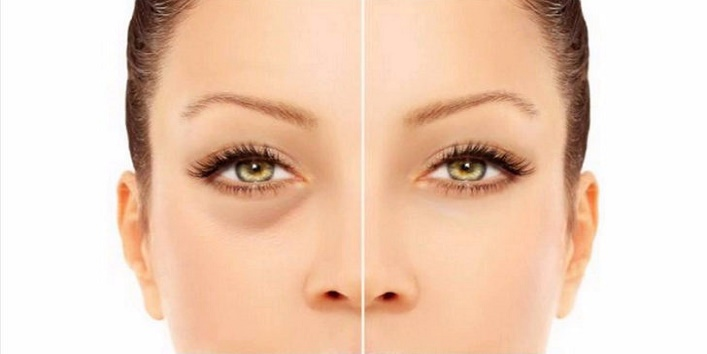 Follow-these-natural-tips-to-prevent-eye-related-problems-2