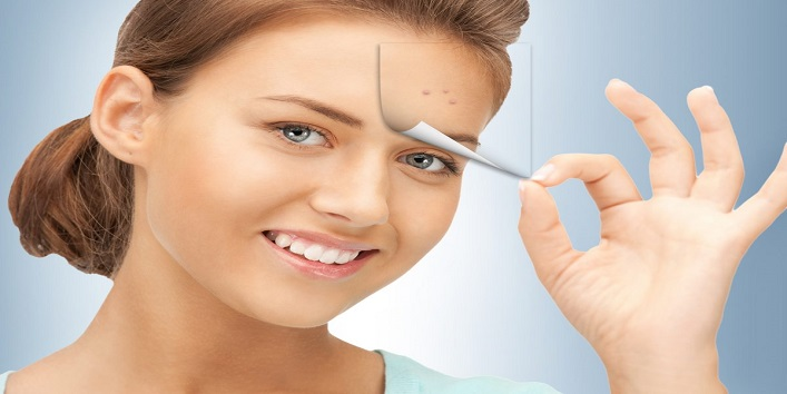 Relief From pimples